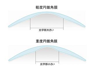 ローズK2のデザイン